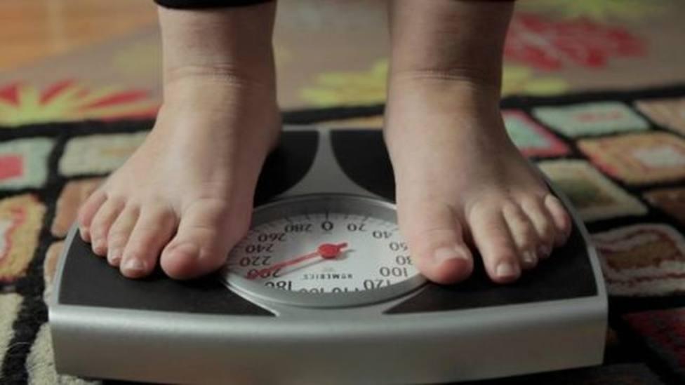 ctv-1xl-obesidad-infantil-acelerando-regiones-pobres ediima20171010 0651 19