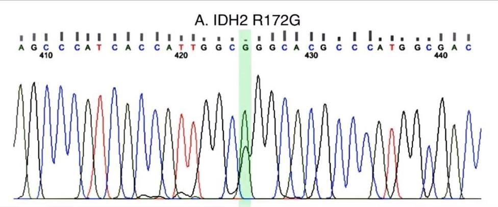 Imagen de la mutación hallada en el gen IDH2
