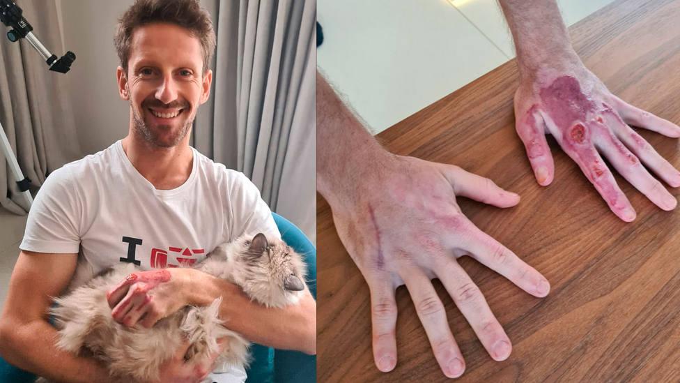 Así tiene las manos Romain Grosjean un mes y medio después del accidente que sufrió en el circuito de Shakir
