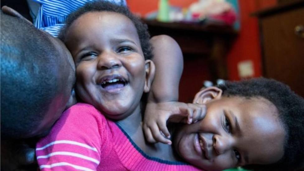 La difícil decisión de un padre con hijas de siamesas: salvar la vida de una o dejar morir a ambas