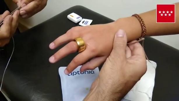 La curiosa forma con la que un bombero logra sacar un anillo a un niño de 9 años