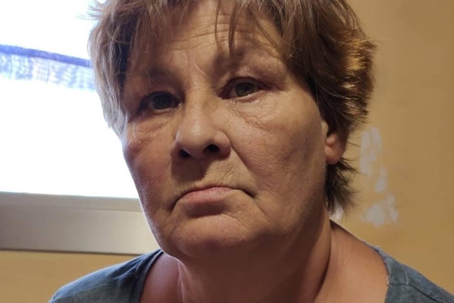 Una superviviente de cáncer de mama lanza una campaña de crowdfunding para recuperar su dentadura