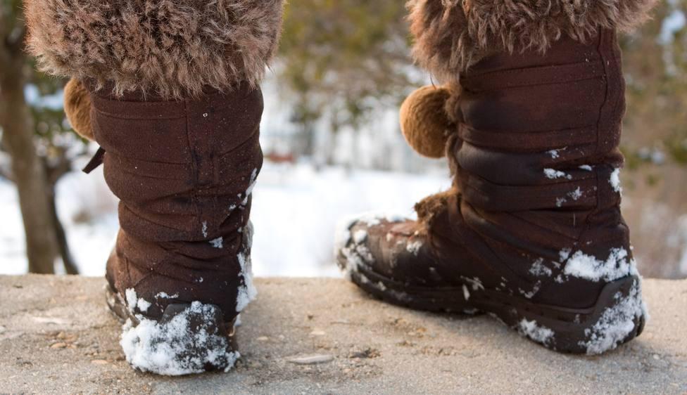 Podólogos alertan de que consumir lácteos y cafeína en grandes dosis aumenta el riesgo de sabañones durante el invierno