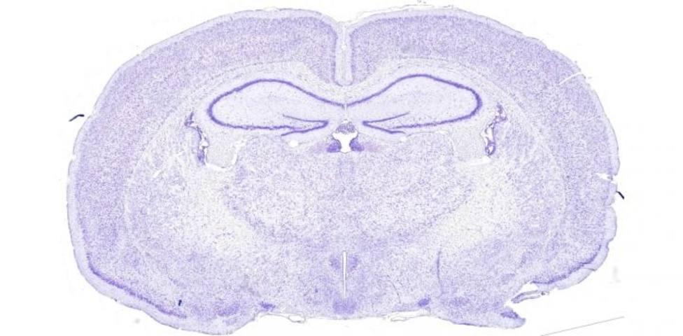 La hormona del estrés ayuda a controlar el ritmo circadiano de las células cerebrales, según un estudio en ratones