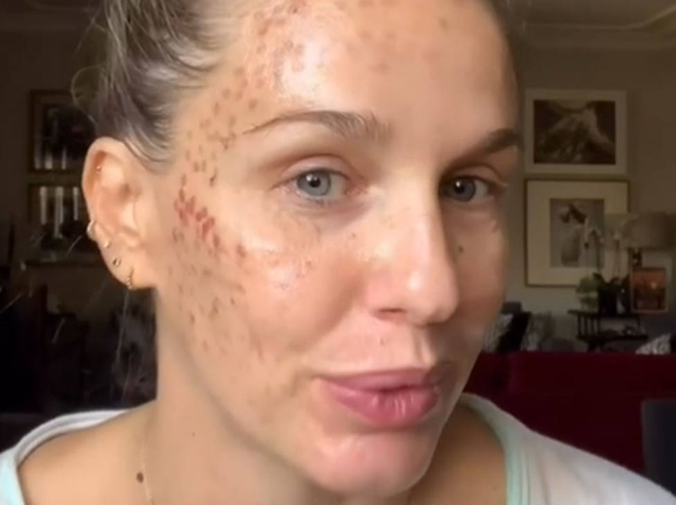 El agresivo tratamiento de belleza que ha afectado gravemente a la cara de la actriz Carola Baletzana
