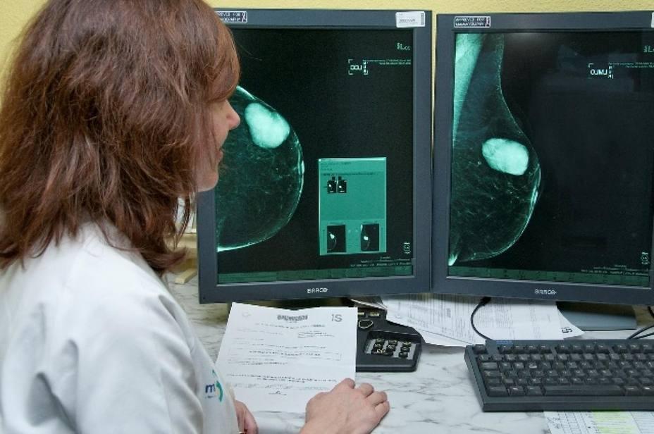 Las mamografías siguen aportando beneficios a las mujeres mayores de 75 años