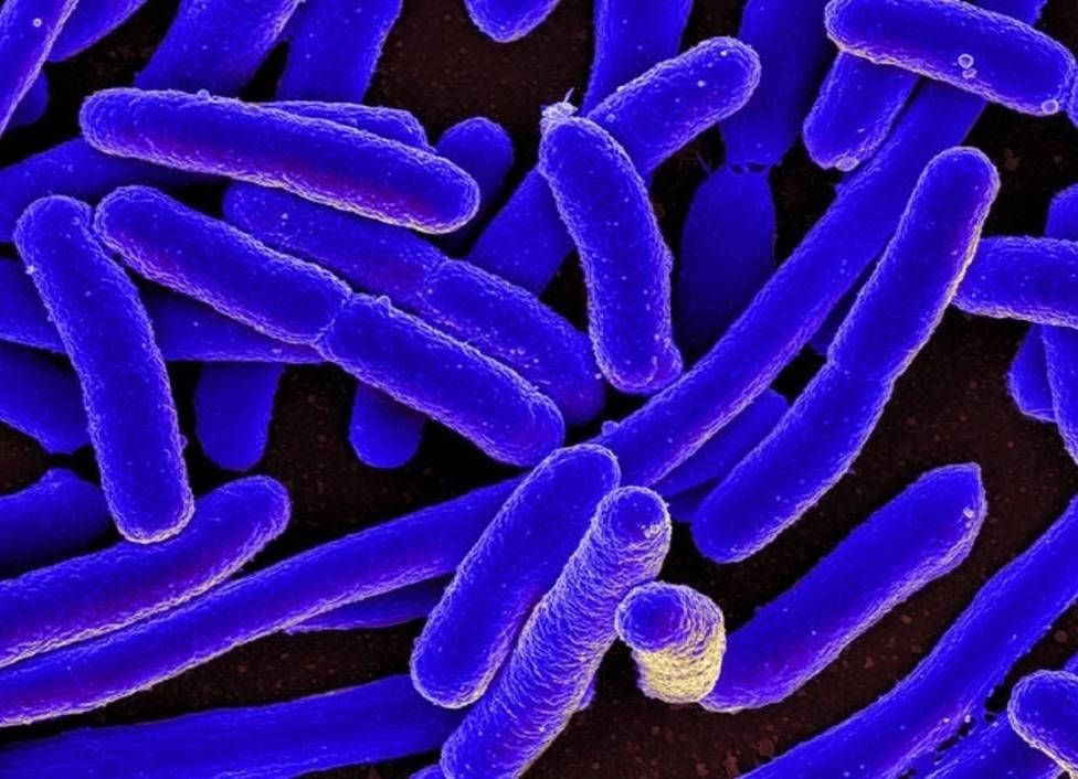 La falta de oxígeno en el intestino grueso favorece la aparición de infecciones por E. coli, según un estudio