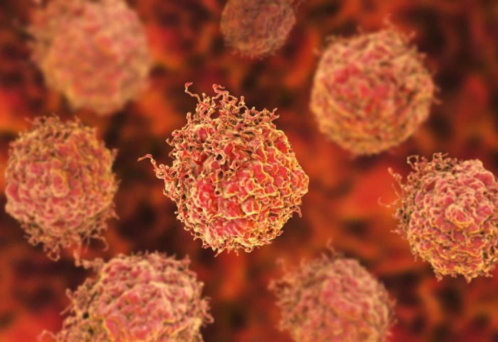PSA para el cáncer de próstata es una buena prueba