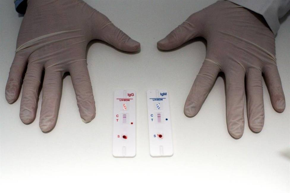 Farmacias de Orense son pioneras en España en realizar test rápidos