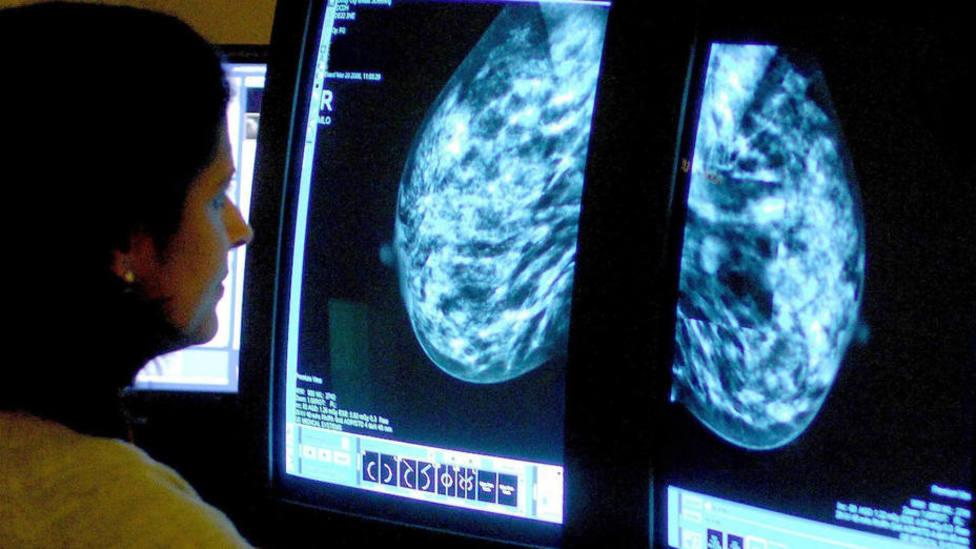 Más de 15.000 personas llevan esperando más de dos meses para hacerse una radiografía