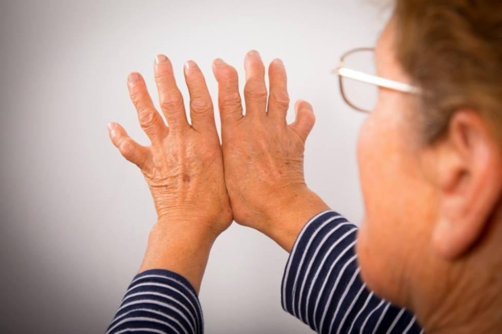 El dolor artrítico reumatoide podría ser causado por anticuerpos, según una investigación