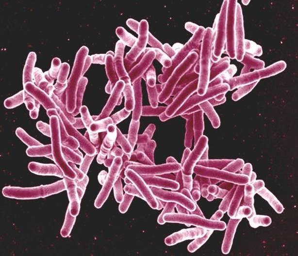 Investigan un nuevo antibiótico contra la tuberculosis que podría reducir el tiempo de tratamiento