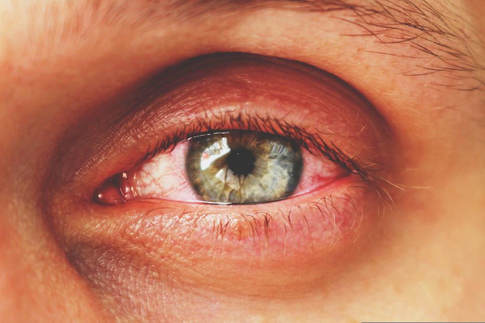 Un estudio del Hospital Clínico de Madrid afirma que la conjuntivitis es una manifestación de la Covid