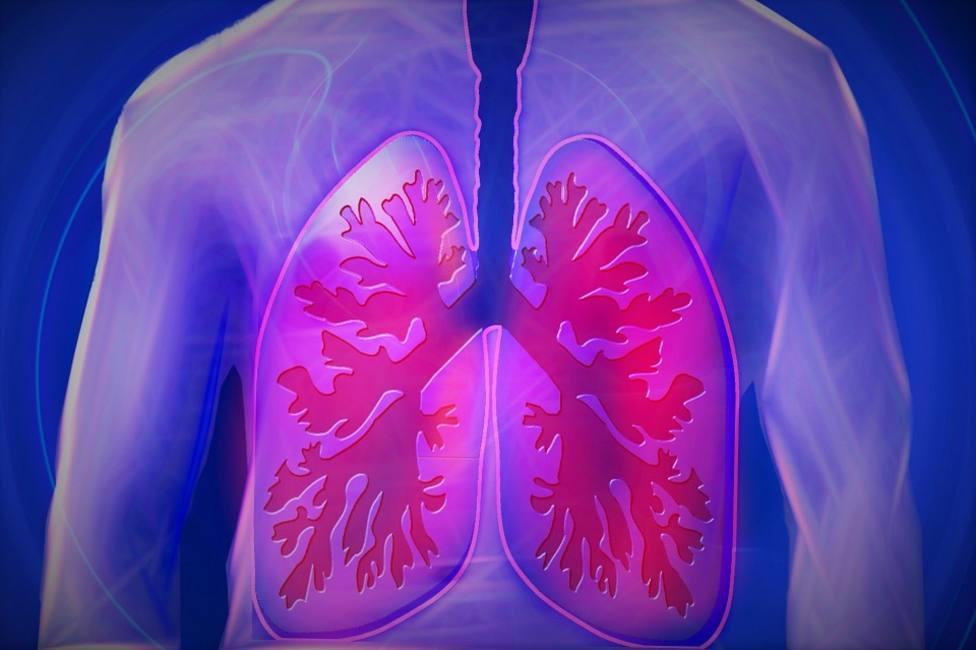 Descubren un tratamiento que reduce el cáncer de pulmón en el 80 % de pacientes