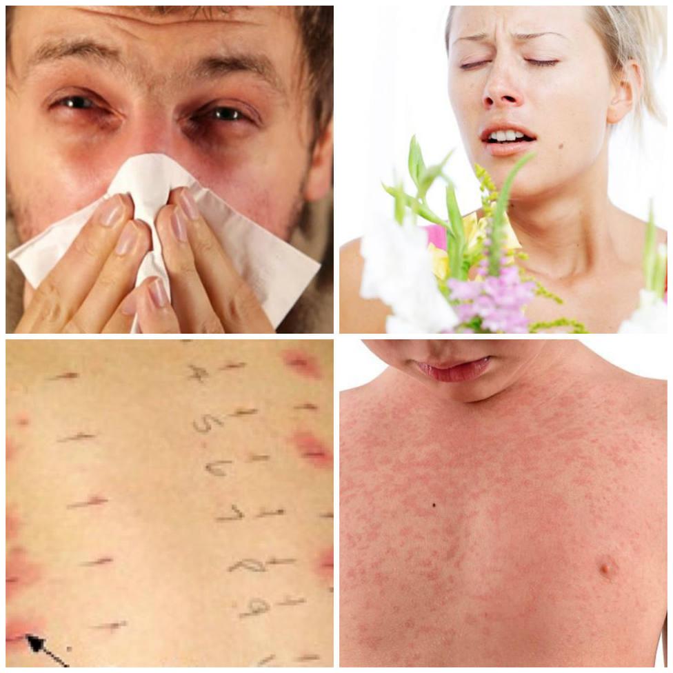 ctv-yhk-alergicos
