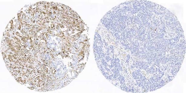 Científicos españoles crean el primer atlas de proteínas para pronosticar el cáncer de mama más agresivo