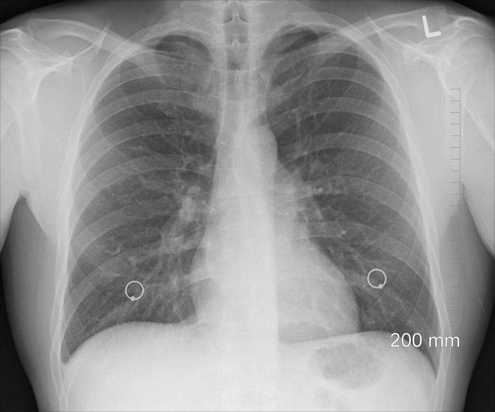 Pulmones, radiografia