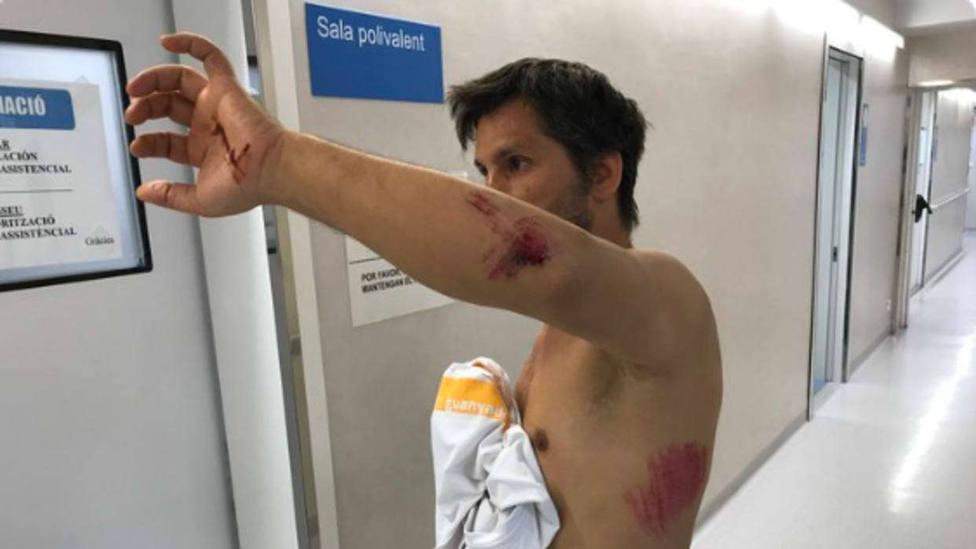 Un polémico activista okupa denuncia una agresión al grito de Viva España que las redes ponen en duda