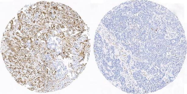 Combinar un fármaco para la diabetes e inmunoterapia puede combatir el cáncer de mama, según estudio