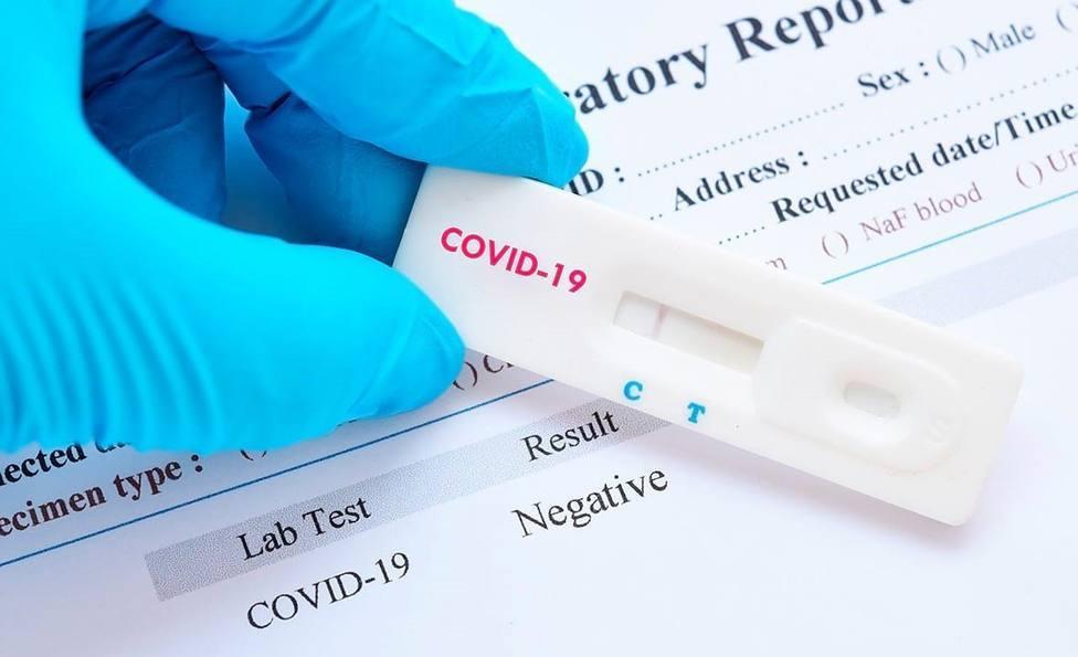 Prueba PCR en Baleares