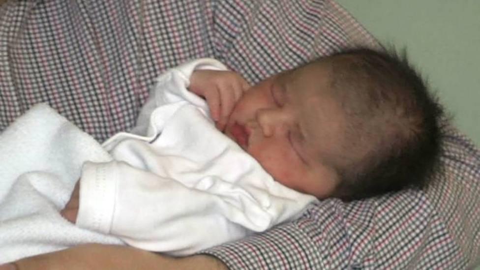 Catorce bebés afectados por el síndrome del hombre lobo en Andalucía después de ingerir omeprazol defectuoso