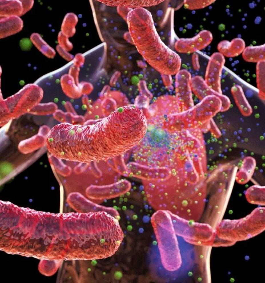 Experto dice que si España invirtiera mucho más en controlar la tuberculosis se podría eliminar la enfermedad en 2050