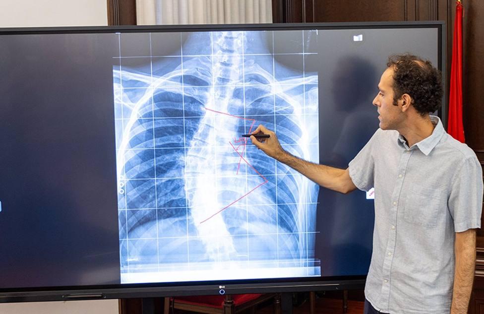 La UCAM lidera una investigación para crear un dispositivo que mejora la calidad de las radiografías
