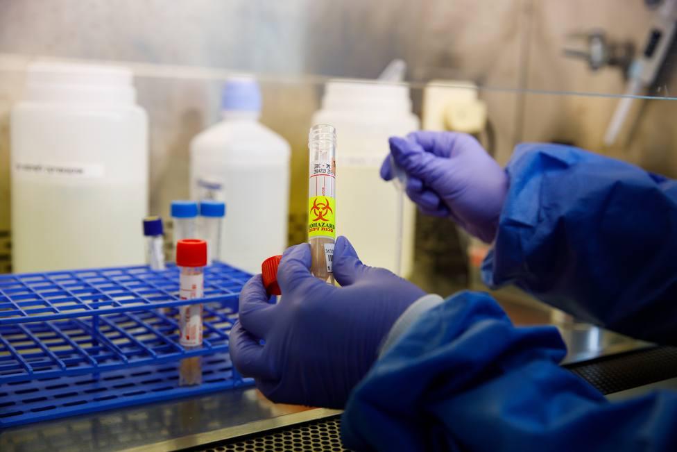 Foto de archivo de un test de coronavirus - FOTO: Europa Press / Ziv Koren