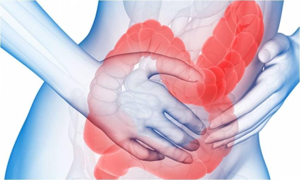 Hasta un tercio de los pacientes con enfermedad inflamatoria intestinal puede tener artritis, según experta