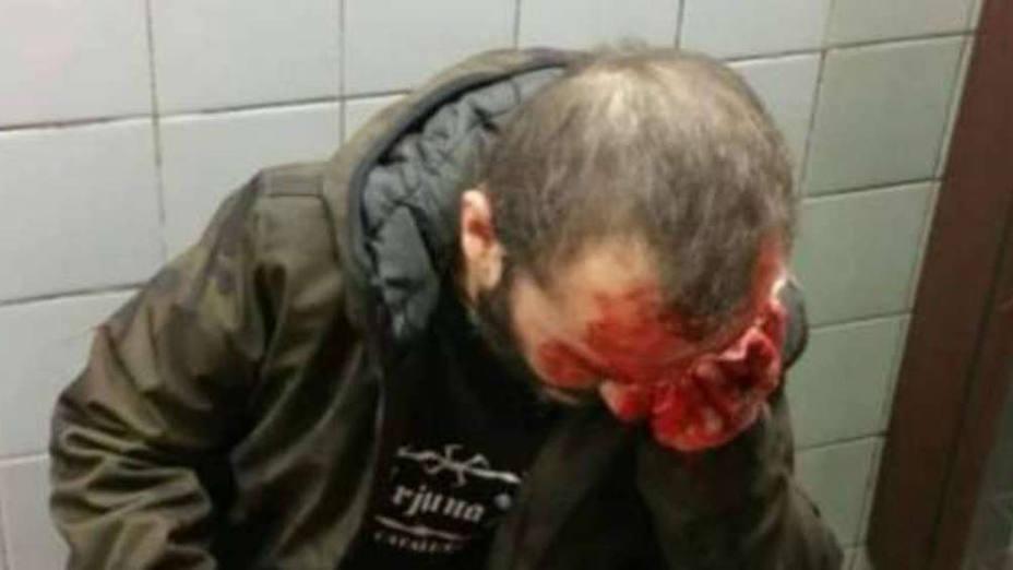 Imagen del hombre agredido