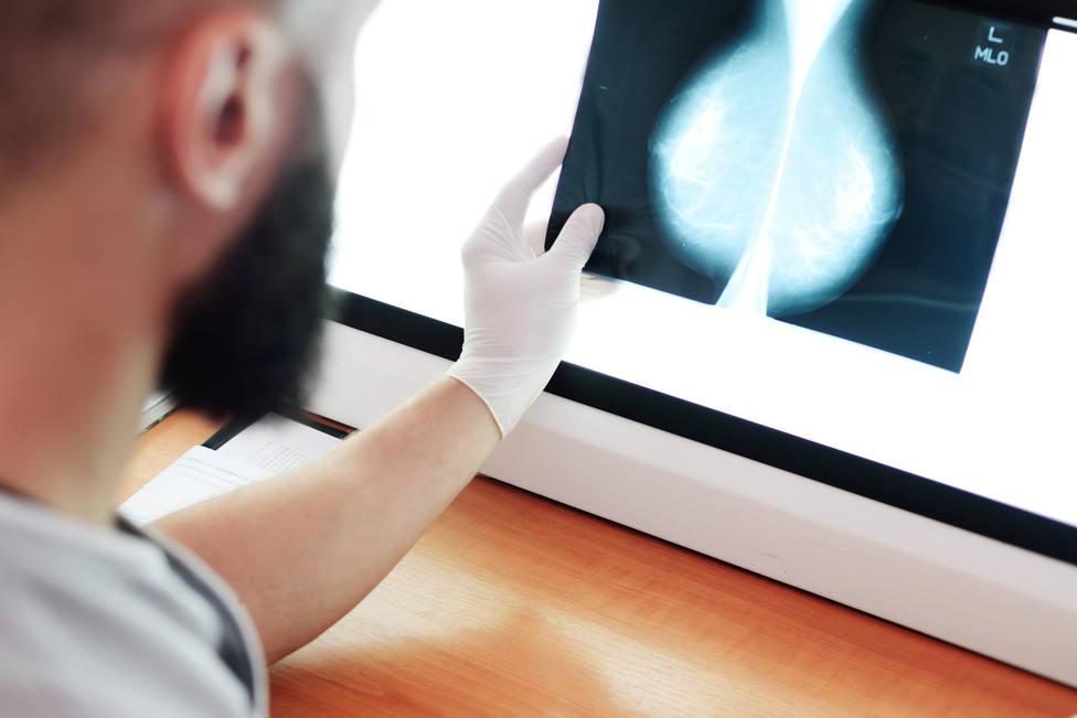 Una mayor masa muscular en la infancia puede evitar el cáncer de mama en las mujeres a la edad adulta