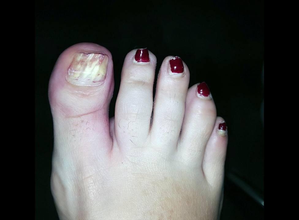 El exceso de esmaltes permanentes puede causar daños irreparables en las uñas de los pies