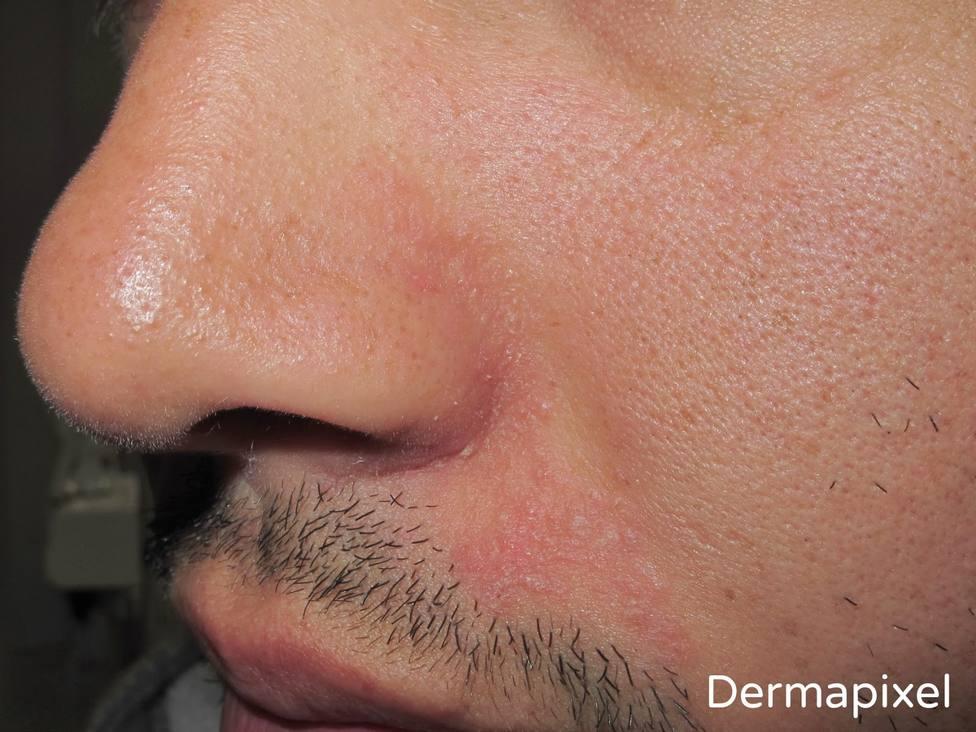 Granos y rojeces, los problemas en tu piel por el uso de las mascarillas