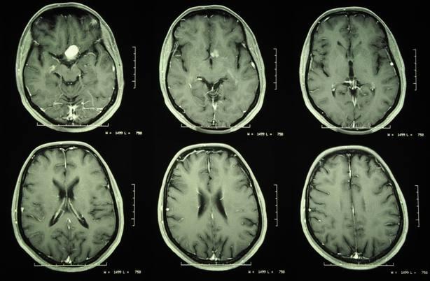 Cada año se detectan en España cerca de 4.000 tumores de origen desconocido, según GECOD