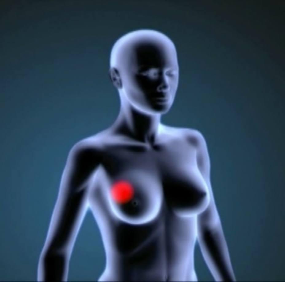 Hallan que una proteína podría jugar un papel en la prevención del crecimiento y diseminación del cáncer de mama