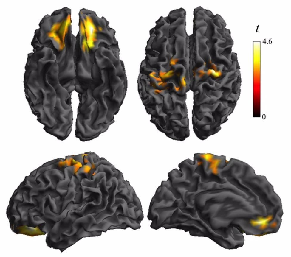 Estudio del cerebro en menores con obesidad