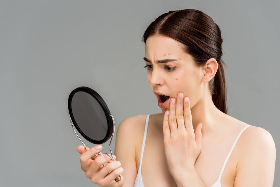 Mascarilla más acné de invierno dan como resultado el maskné