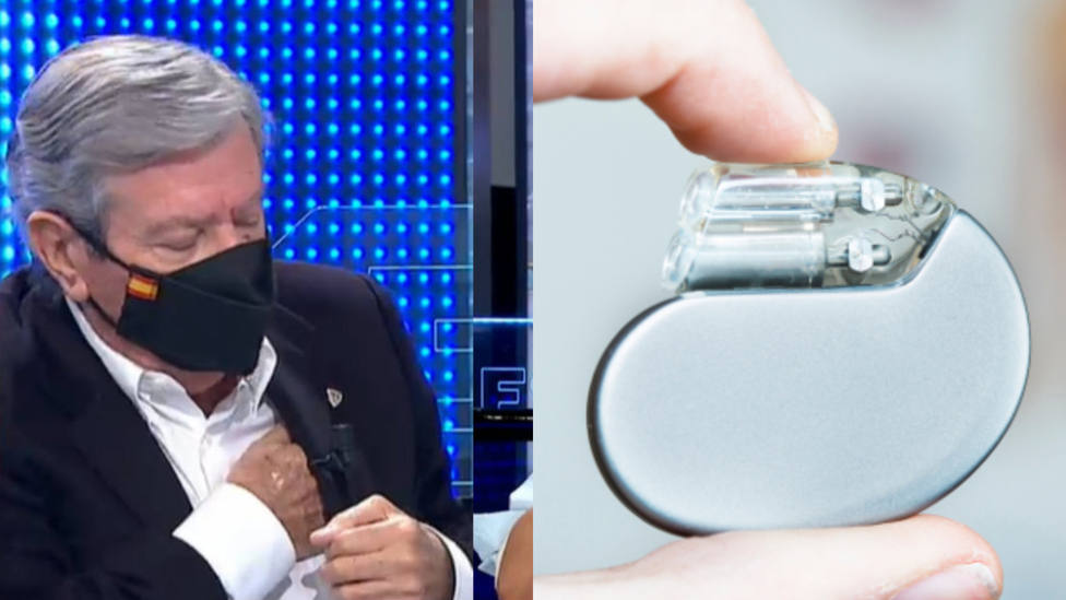 Así funciona el desfibrilador implantado a Corcuera que le ha saltado en plena entrevista con Susanna Griso
