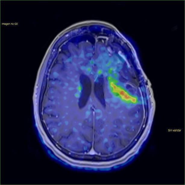 Un estudio muestra potencial para desarrollar biopsias líquidas de tumores cerebrales