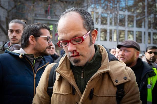 El periodista de El País, Alfonso Congostrina, tras ser agredido por los taxista de Barcelona
