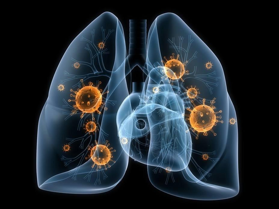 Experto recalca la importancia del diagnóstico precoz en cáncer de pulmón y lo califica de reto
