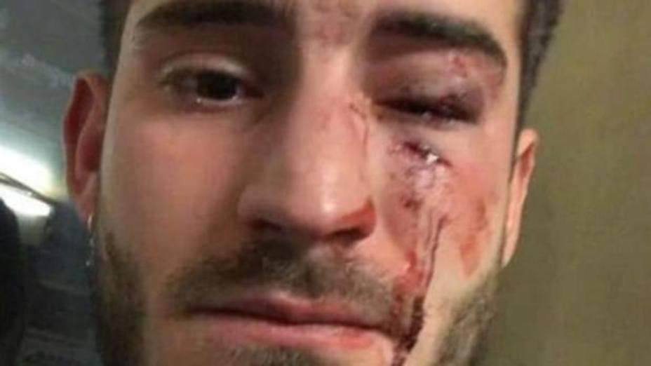 Dos detenidos por una presunta agresión homófoba en el metro de Barcelona
