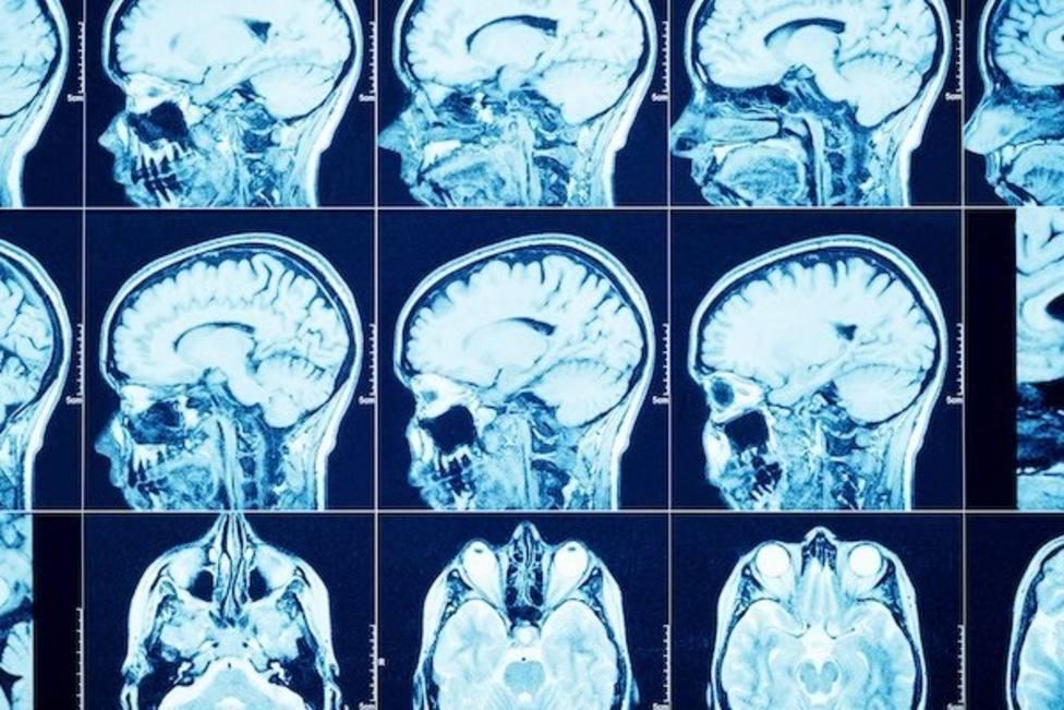 Identifican alteraciones genéticas en tumores cerebrales inoperables de niños con un simple análisis de sangre
