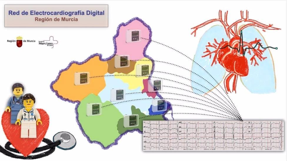 El SMS culmina la implantación de una innovadora red de electrocardiografía digital en la Región de Murcia