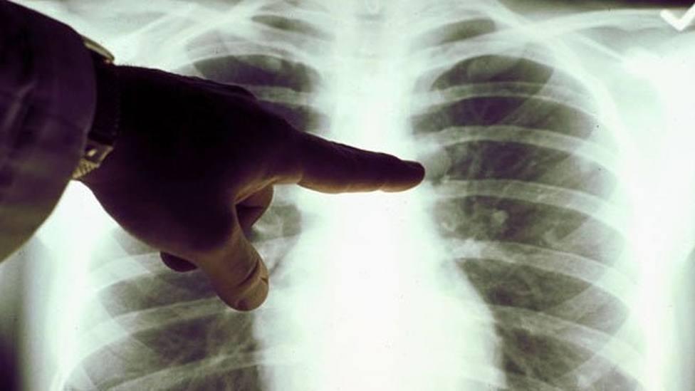 Mujeres con cáncer pulmón lanzan una campaña para concienciar sobre la enfermedad