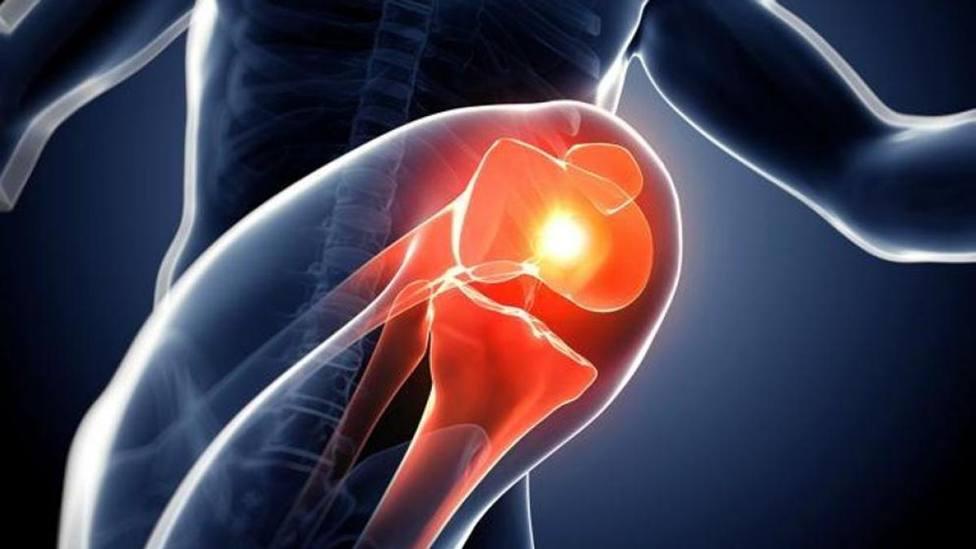 Técnicas quirúrgicas conservadoras de la articulación en la artrosis de rodilla