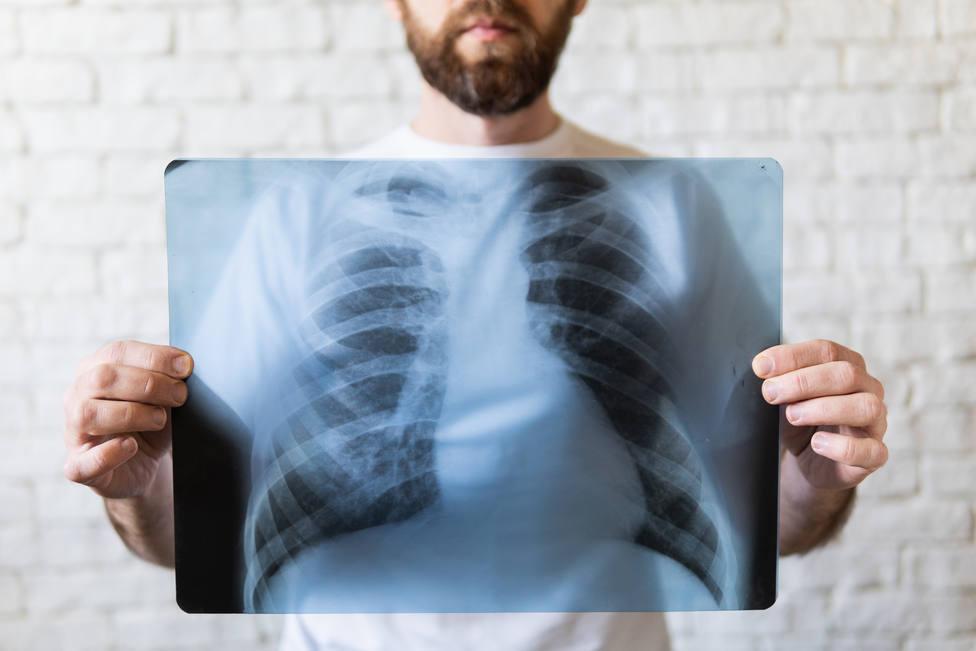Investigadores de La Rioja proponen terapia para restaurar una hormona en el pulmón de pacientes Covid