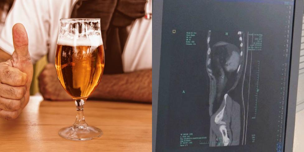 ctv-fwg-cerveza-vejiga