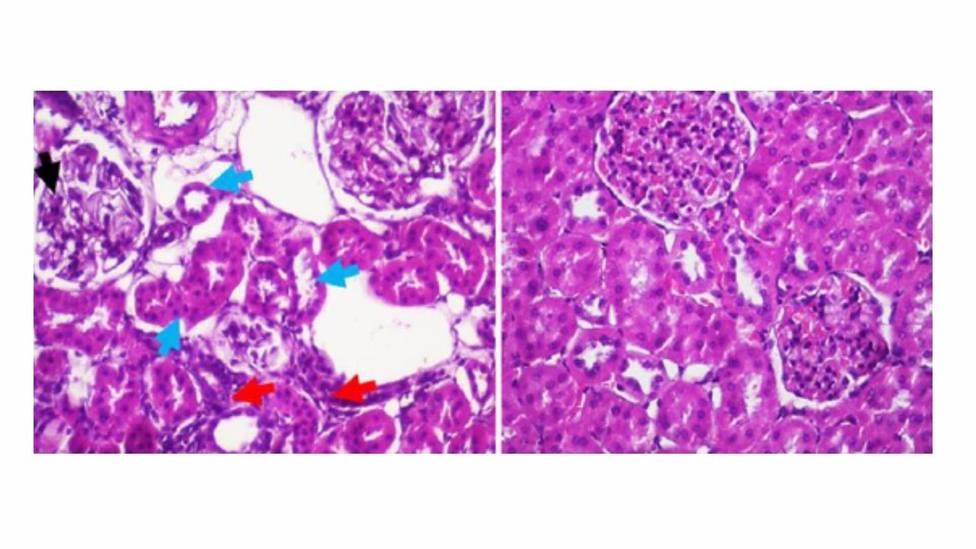 Granada.- Científicos demuestran que la melatonina protege del daño renal provocado por la obesidad con diabetes